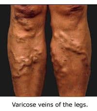 varicose-veins-legs